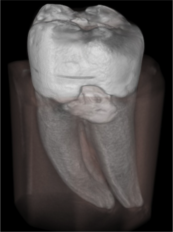 Tooth CT reconstruction